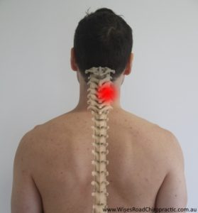 Neck pain treatment Maroochydore